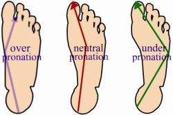overpronate, underpronate and neutral pronation examples